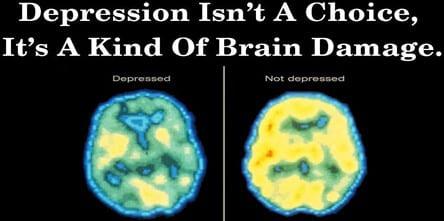 Depression Why Am I Depressed