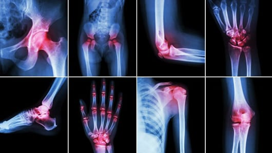 Living with Arthritis Pain