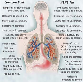 Cold Flu Symptoms
