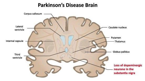 Parkinson's disease brain