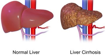 Liver normal and fatty