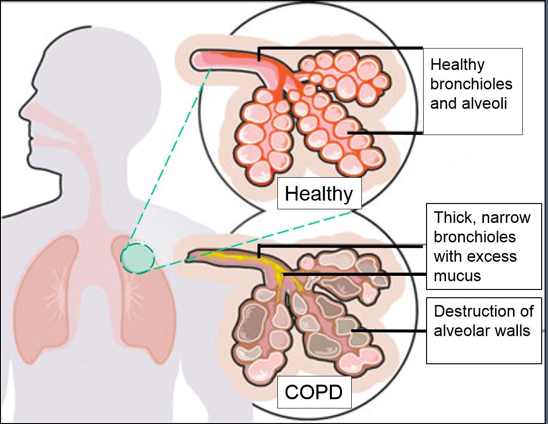 Alveoli COPD