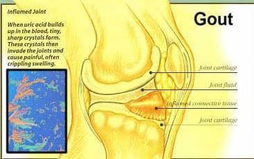 Gout in Knee