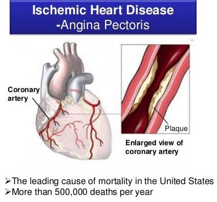 Deadliest disease Ischemic heart disease