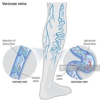 Varicose Veins Blood Flow