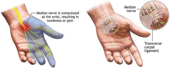 Carpal Tunnel Syndrome Hands