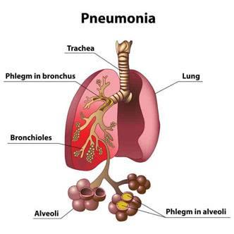 Pneumonia Indications
