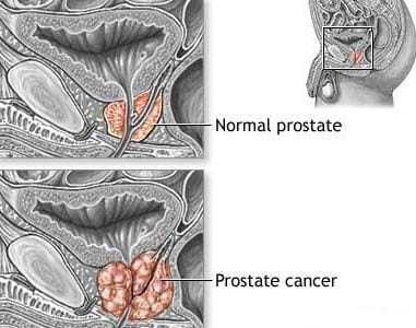 Prostate normal & with cancer