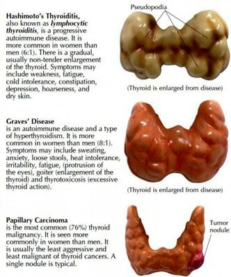 Symptoms For A Thyroid Problem Choose Your Life Style