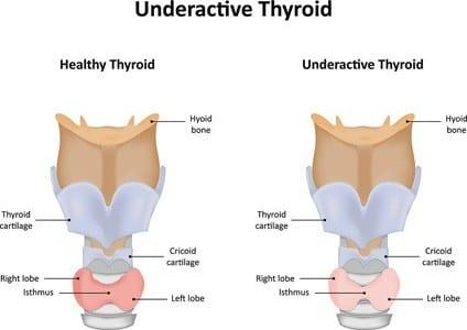 Under active Thyroid