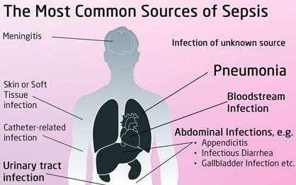 Causes of sepsis