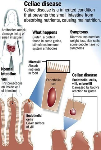 Celiac Disease Causes