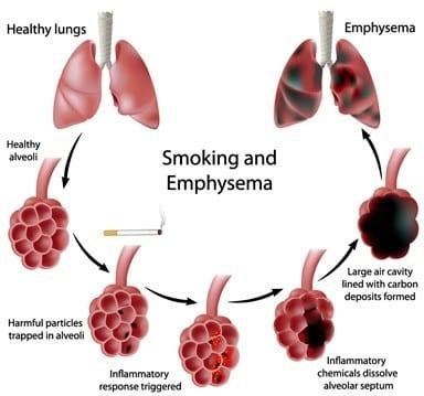 Smoking and emphysema