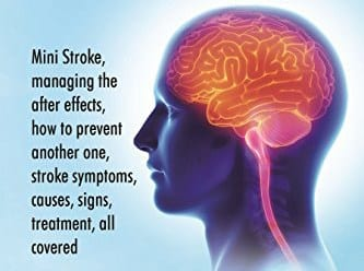 Mini Stroke Signs