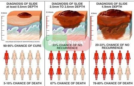 Skin Cancer Progression
