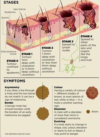 Melanoma skin cancer stages