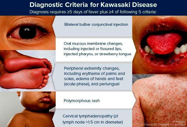 Diagnosis Kawasaki disease