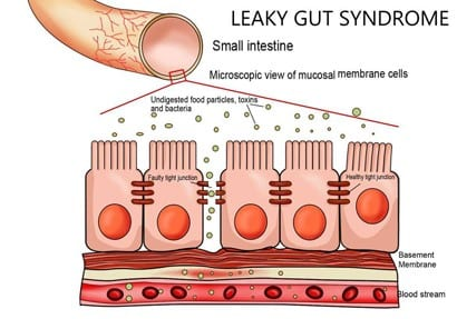 Leaky Gut Signs