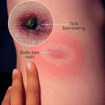 Lyme disease signs causes