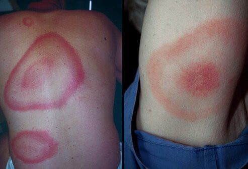 Signs Symptoms Lyme Disease