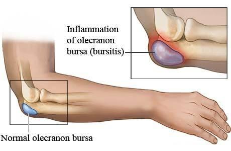 Chronic bursitis in elbow