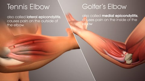 Tennis and golfers elbow pain