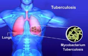 Tuberculosis signs