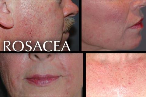 Rosacea skin disease treatments