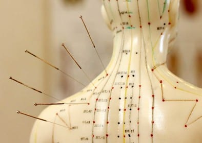 Acupuncture needle point chart