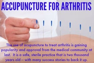 Acupuncture for arthritis needles in back