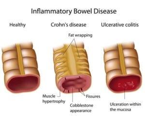 Inflammatory bowel disease types