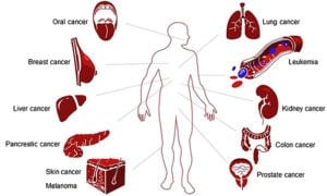 Most common Cancer list