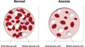 Anemia, normal and anemic blood cells