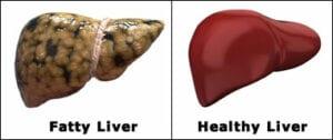 image-fatty -liver-healthy-liver